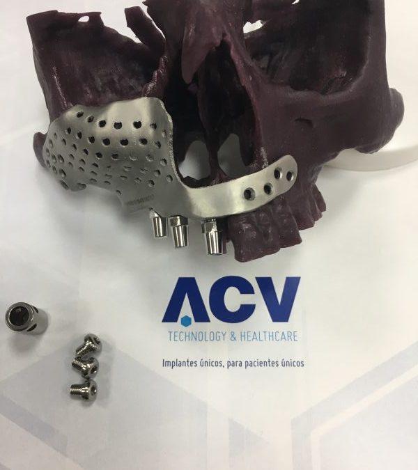 Recontrucción maxilofacial
