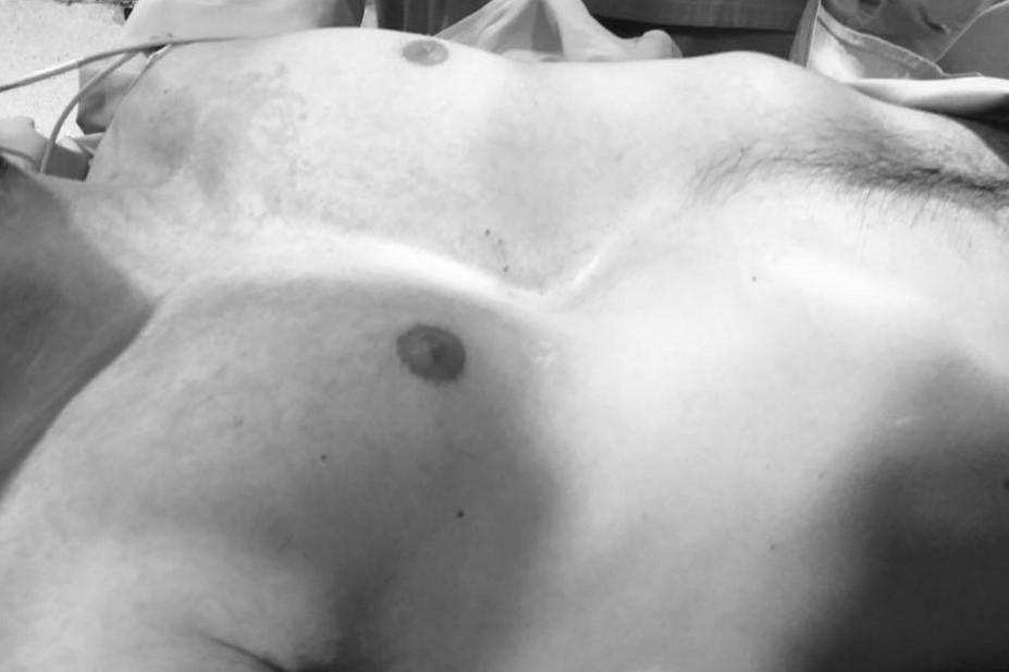 Preguntas frecuentes sobre la operación con implantes a medida 3D para Pectus Excavatum y Síndrome de Poland: