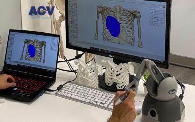 Creación de implantes torácicos con la más avanzada tecnología 3D