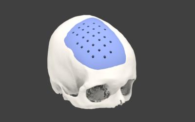 Craneoplastias a medida 3D.