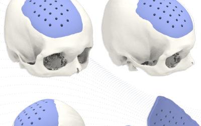 Craneoplastia a medida 3D